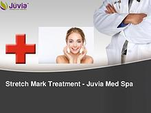 Stretch Mark Treatment at Juvia Med Spa