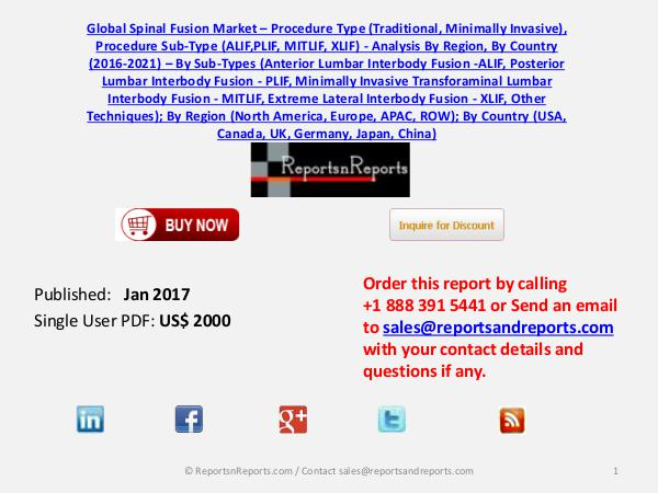Spinal Fusion Market Analysis, Growth and 2021 Forecast Jan 2017