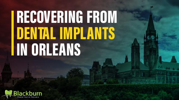 Recovering from Dental Implants in Orleans Dental Implants in Orleans