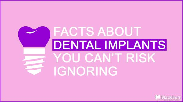 Facts About Dental Implants You Can't Risk Ignoring Facts-About-Dental-Implants-You-Can't-Risk-Ignorin