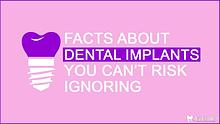 Facts About Dental Implants You Can't Risk Ignoring