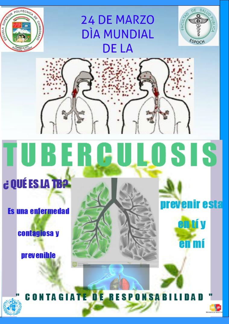 TUBERCULOSIS 1