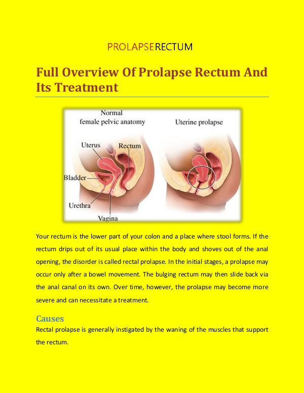 Prolapse Rectum Treatment Full Overview of Prolapse Rectum And Its Treatment