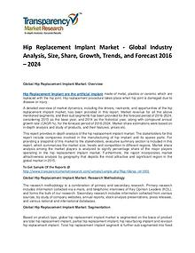 Hip Replacement Implant Market Growth, Price, Demand, and Analysis