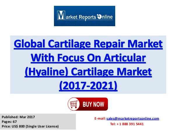 Cartilage Repair Market Research Report and Trends Forecasts 2021 2017 Cartilage Repair Industry Global Market Trend