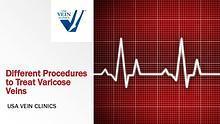 Varicose Veins Treatment Procedures - USA Vein Clinics