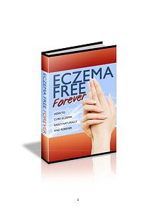 Eczema Free Forever PDF / eBook Download Rachel Anderson