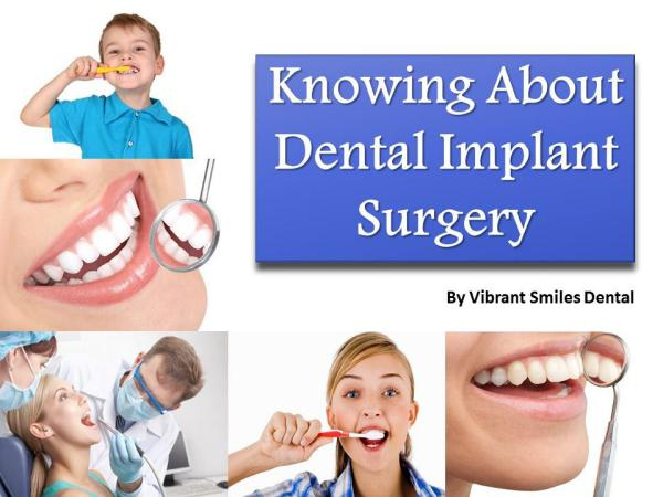 Knowing About Dental Implant Surgery Knowing About Dental Implant Surgery
