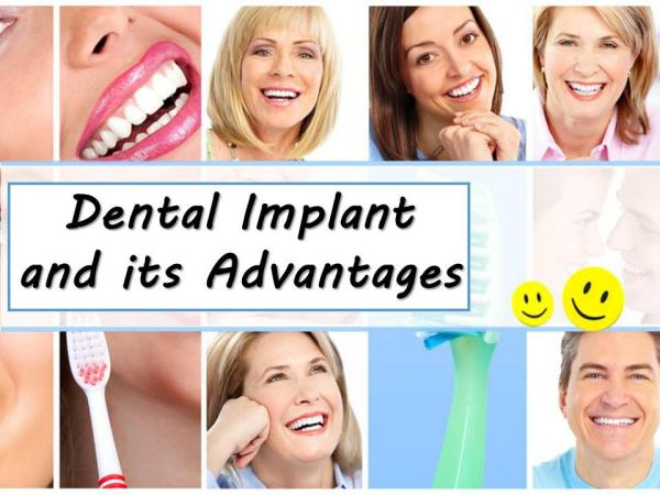 Dental Implant and its Advantages Dental Implant and its Advantages