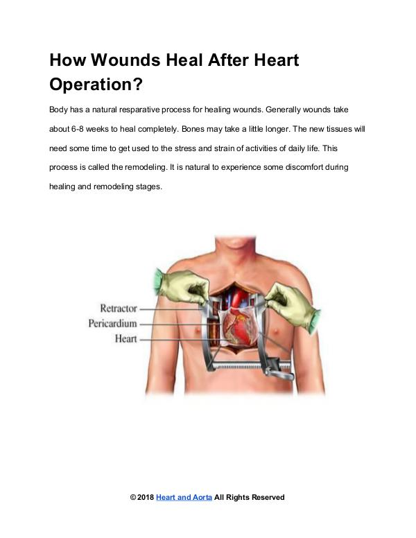 How Wounds Heal After Heart Operation?