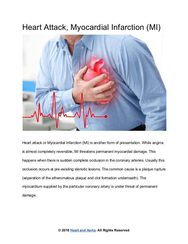 Heart Attack or Myocardial Infarction (MI)