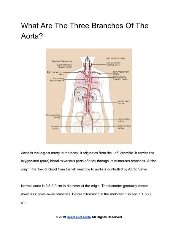 Heart and Aorta Branches Of The Aorta