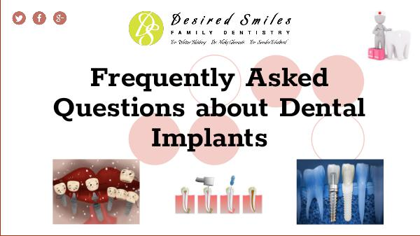 What are Some Frequently Asked Questions about Dental Implants Frequently Asked Questions about Dental Implants