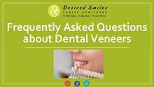 Commonly Asked Questions about Dental Veneers
