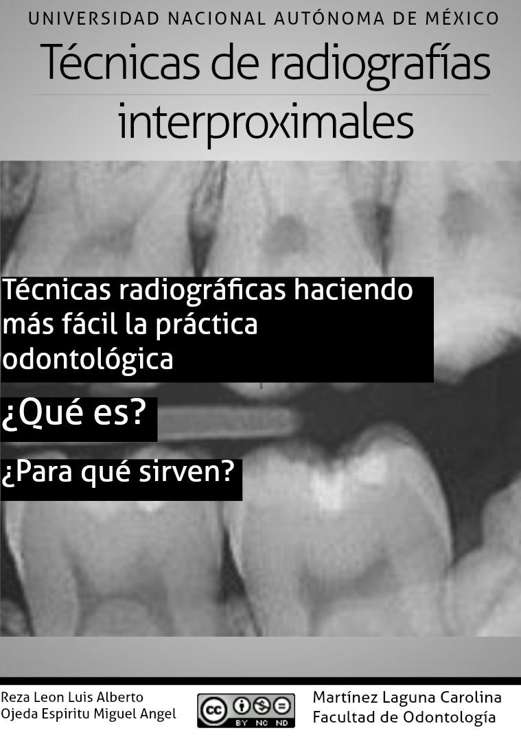 Radiografía interproximal 1