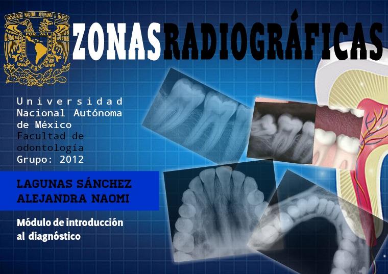 Zonas radiográficas Zonas radiográficas