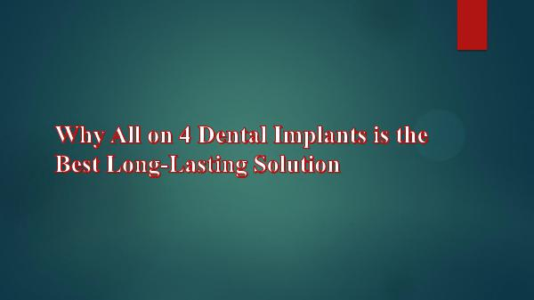 New Teeth in One Day Clinics Why All on 4 Dental Implants is the Best Long-Last