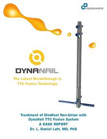 TTC & Hindfoot Fusion | Case Report – DynaNail® TTC Fusion System